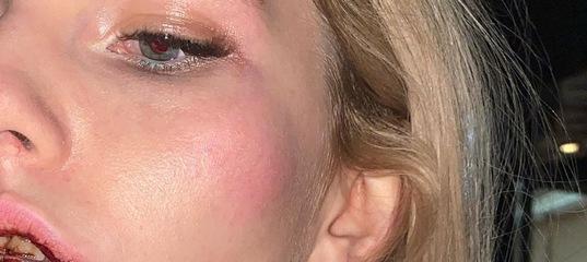 Блогер Mellstroy избил девушку во время стрима. Она попала в больницу с переломом челюсти