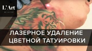 Удаление цветной тату. ПЕРВЫЙ В МИРЕ холодный лазер PicoSure удалит даже цветную татуировку.