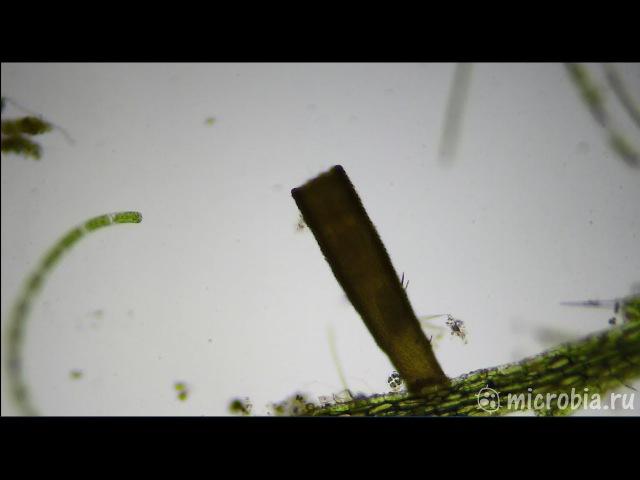 Floscularia ringens rotifer Коловратка флоскулария