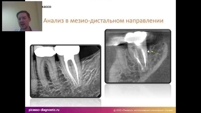 Рентгенологическая оценка пародонтологического профиля пациента