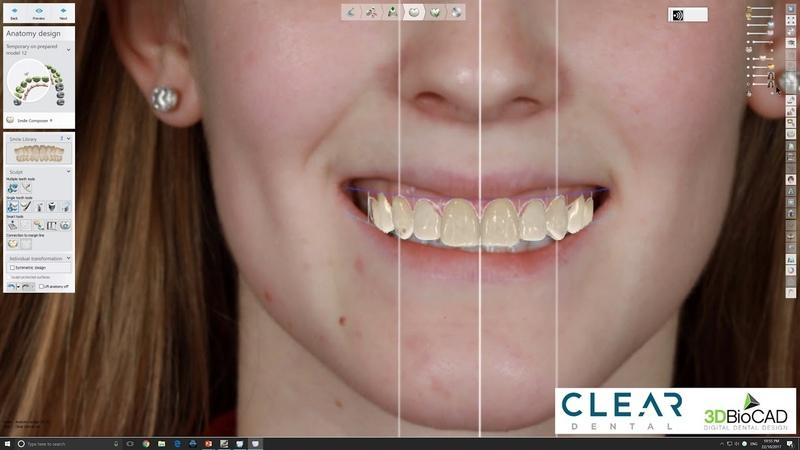 Mock-up Part 2 - Digital Wax-up using 3Shape Dental System