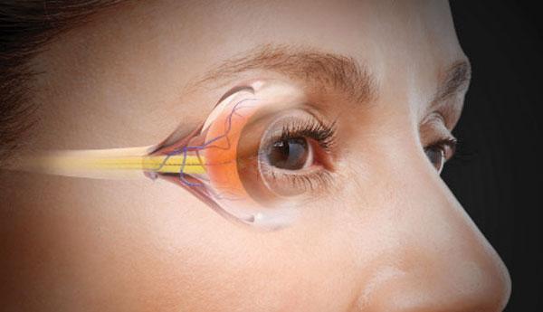В чем разница между катарактой и глаукомой?