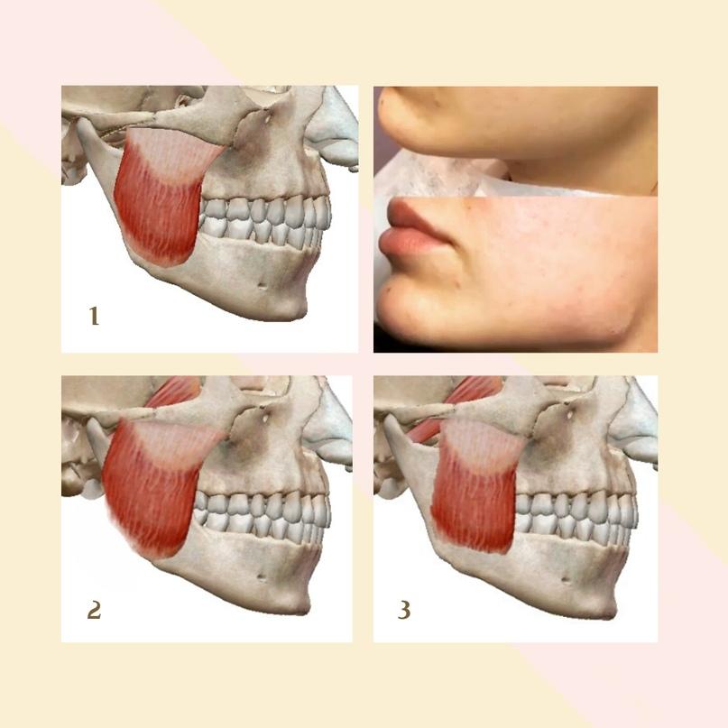 Пропальпировать жевательные мышцы не представляет никакого труда для врача. Жевательная мышца состоит из двух брюшек, но для упрощения понимания показана мышца сплошным волокном.