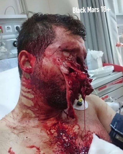 Не был пристегнут и после ДТП лишился лица 23-летний водитель забил на ремень безопасности и во время столкновения с другим авто влетел в руль лицом. Парень получил жуткие травмы: перелом