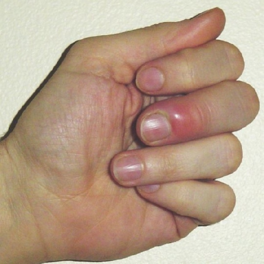 Нарывает палец: что делать, если нарвал палец возле ногтя на руке / ноге