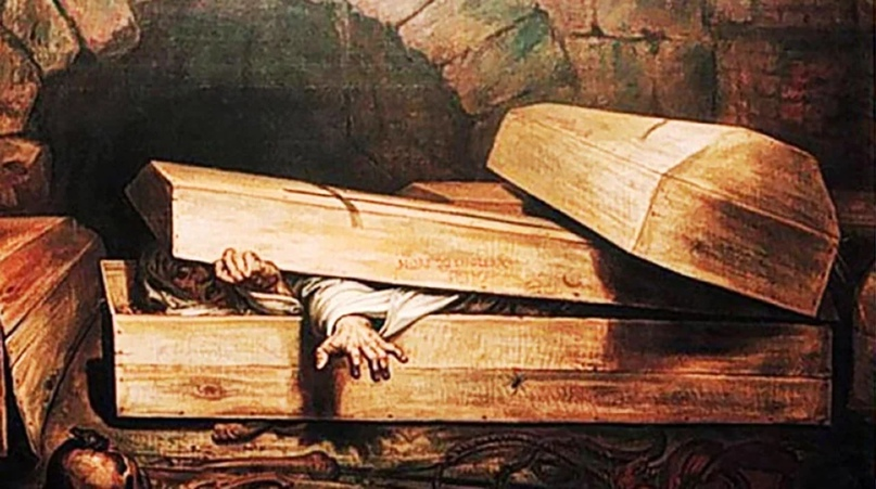 Смерть — это летаргический сон… Методы оживления умерших людей…, изображение №5