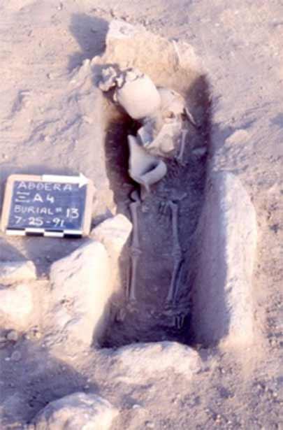 Голова древнего воина, которая содержала доказательства древней операции, была найдена в могиле этого ребенка в Западной Греции в 1990-х годах.