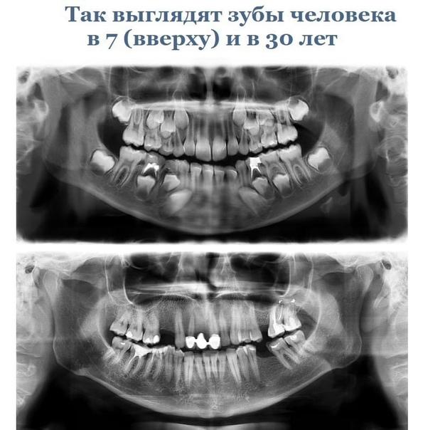 #Сызрань Немного фактов об анатомии человека.Забирай к се...