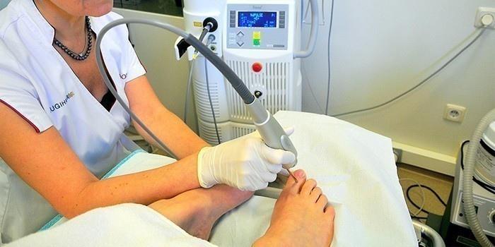 Как лечить онихомикоз ногтей на ногах?, изображение №20